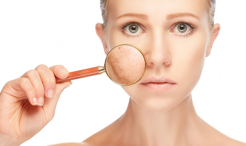 Effective Ways to Fight Pigmentation Spots