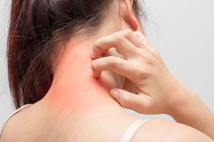 How to take care of atopic skin? Methods to deal with dry and itchy skin